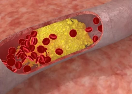 причины возникновения повышенного холестерина